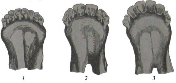 Зубы овцы разного возраста