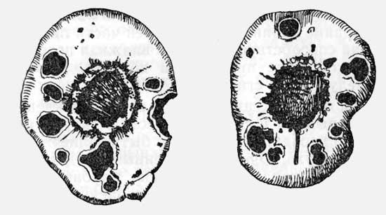 Бактериальная парша гладиолусов